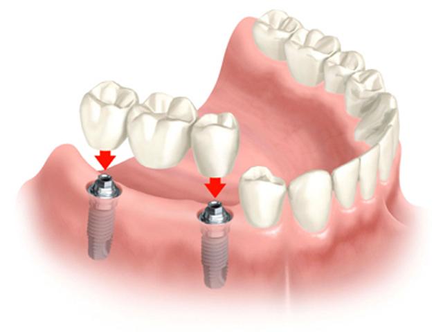 cay-ghep-rang-implant-phuc-hinh-rang-moi-y-nhu-that2225