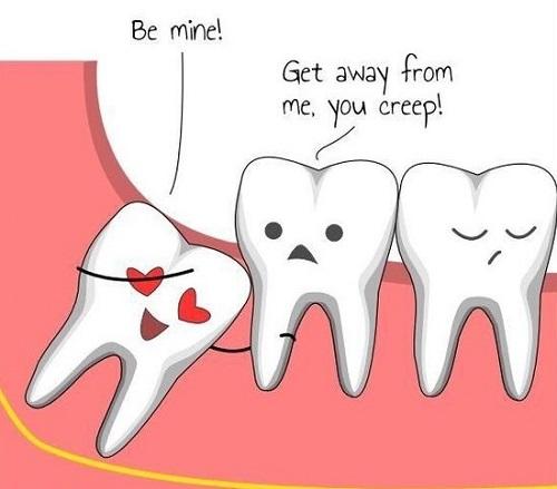 có nên nhổ răng khôn 2