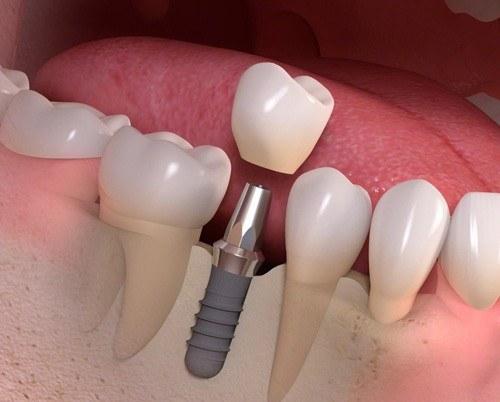 Đặt implant là gì