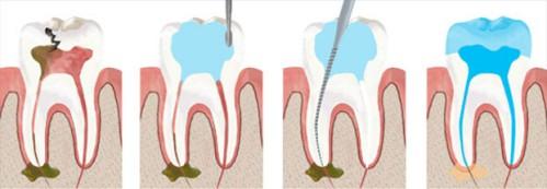 Điều trị tủy răng ở đâu 2