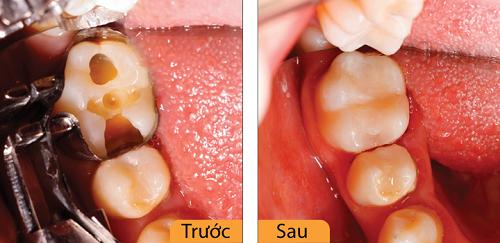 Điều trị răng ở đâu 3