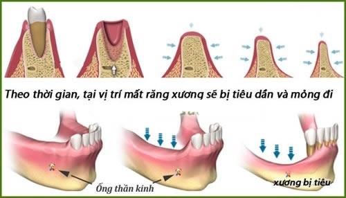 Trồng răng implant có đau không 2