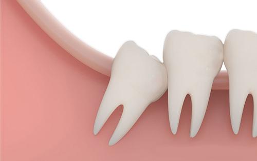 Nhổ răng khôn có nguy hiểm không 2