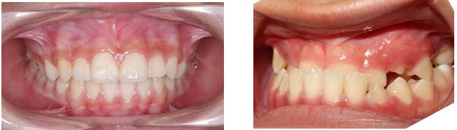 Niềng răng móm ở đâu hiệu quả và uy tín 3