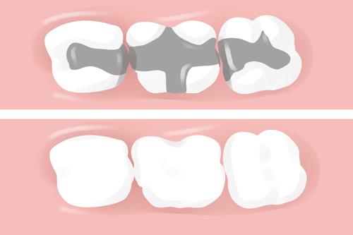 trám răng có đau không 2