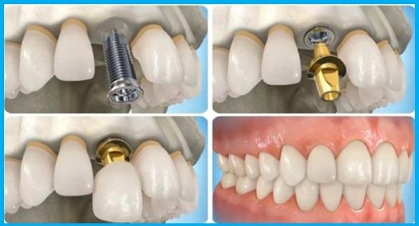 trong-rang-implant-co-dau-khong4