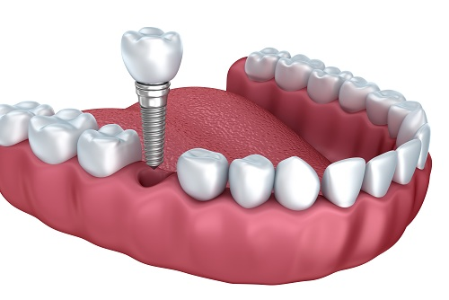 trong-rang-implant-gia-bao-nhieu-la-phu-hop-nhat1