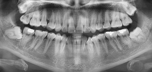 Có nên nhổ răng khôn mọc ngầm không