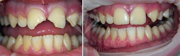 Hàn răng thưa bằng composite có bền chắc không 2