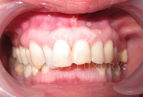 Hô hàm có niềng răng được không