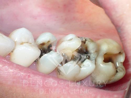 Nguyên nhân gây lên viêm tủy răng 2
