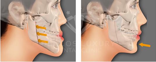 Nắn chỉnh răng vẩu như thế nào an toàn và hiệu quả 3