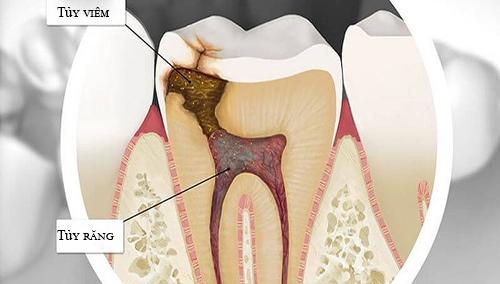 dấu hiệu của viêm tủy răng