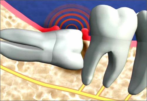 Nhổ răng khôn hàm dưới có đau không