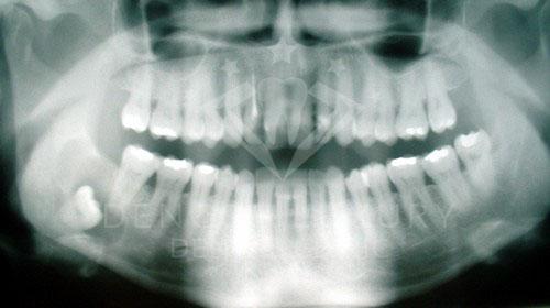 Nhổ răng khôn hàm trên có nguy hiểm không 2