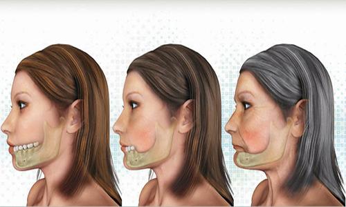 tiêu xương ổ răng 2
