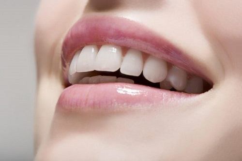niềng răng có tốt không 2