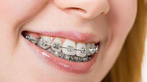 Nắn chỉnh răng vẩu như thế nào an toàn và hiệu quả 2