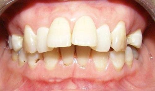 răng hô là gì