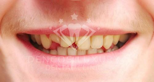 Tại sao phải hàn răng khi bị mẻ răng