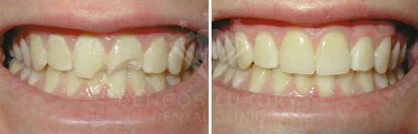 Tại sao phải hàn răng khi răng bị mẻ 2