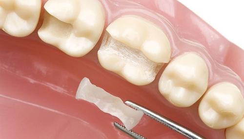 hàn răng có đau không 2