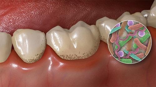 Viêm tủy răng có mủ có nguy hiểm không 2