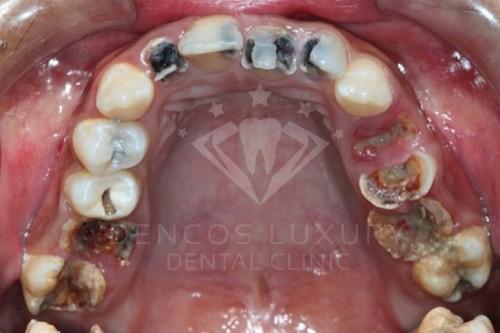 Viêm điều trị răng sữa có ảnh hưởng gì không