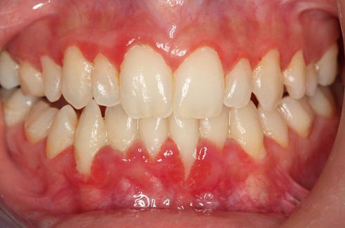 chảy máu nướu răng là bệnh gì 2