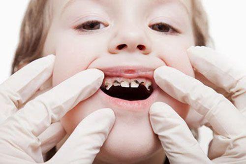 có nên nhổ răng sâu cho trẻ 2