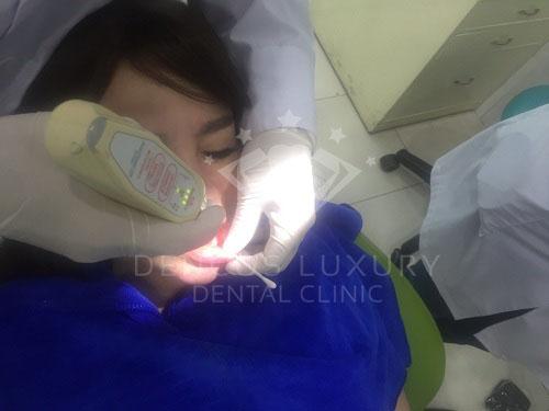 Sâu răng là gì 5