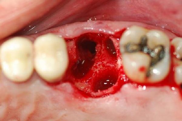 Nên làm gì sau khi nhổ răng khôn 3