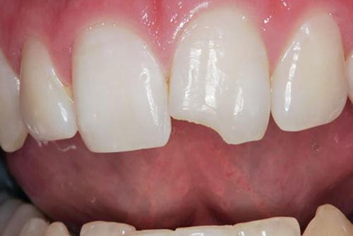 nguyên nhân của răng nhạy cảm là gì 2