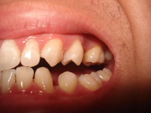 Niềng răng có khắc phục được răng thưa không