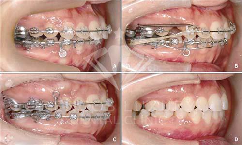 Răng hô có di truyền không 2