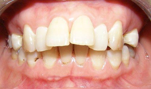 Kết quả hình ảnh cho trồng răng sứ mà về nhà cảm giác
