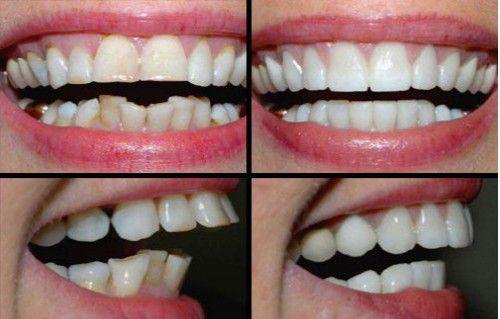 Răng bị hô có nên bọc răng sứ không 2