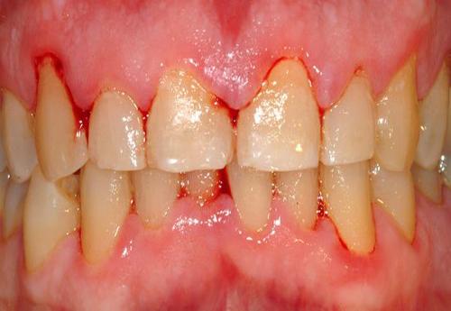 viêm nướu răng ở trẻ em 3