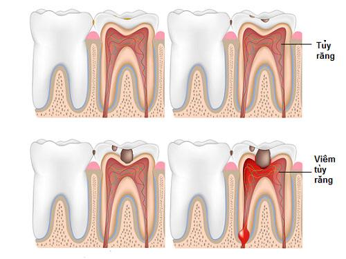 Bệnh viêm tủy răng có chữa được không