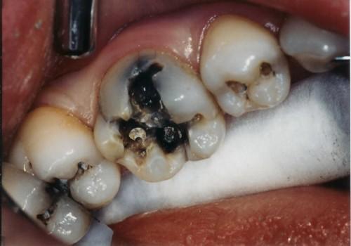 Bệnh viêm tủy răng có chữa được không 2