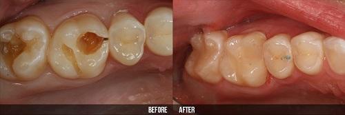 Bệnh viêm tủy răng có chữa được không 3