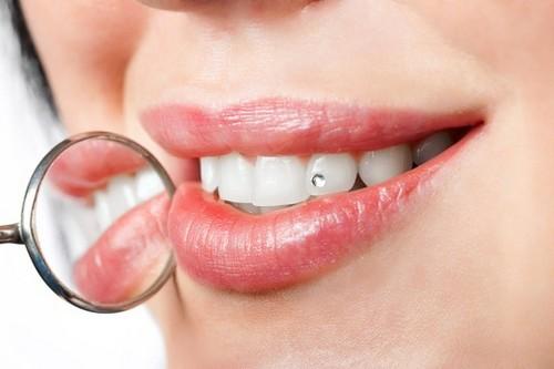 Nguyên nhân răng bị ê buốt
