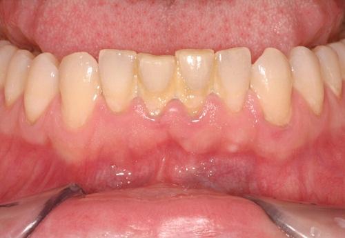 Cao răng màu gì