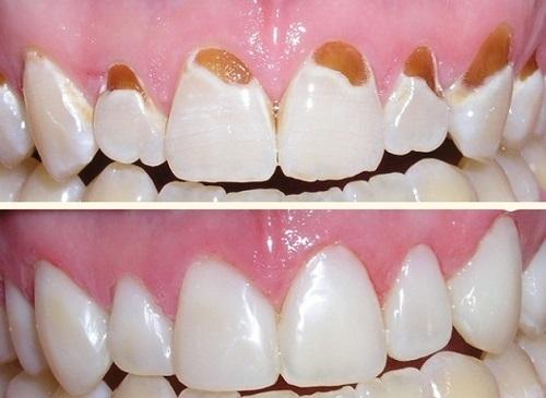 Làm sao để ngừa sâu răng 3
