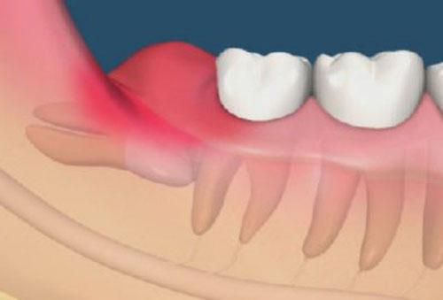 mọc răng khôn có ý nghĩa gì 2