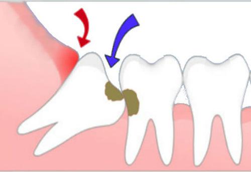 nhổ răng khôn bị sâu 2