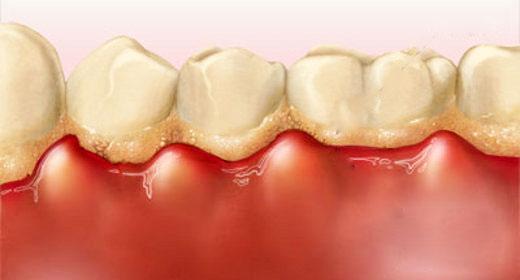 Bệnh nướu răng