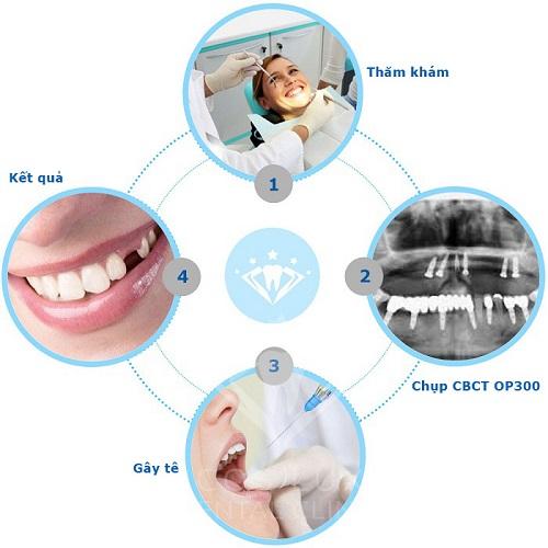 quy trình nhổ răng sâu