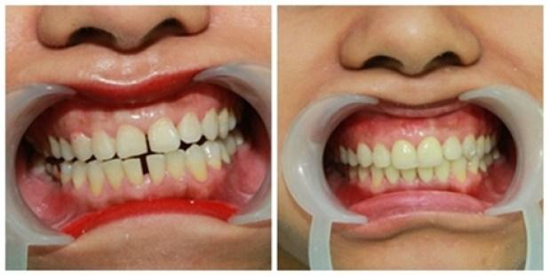 Làm khít răng thưa
