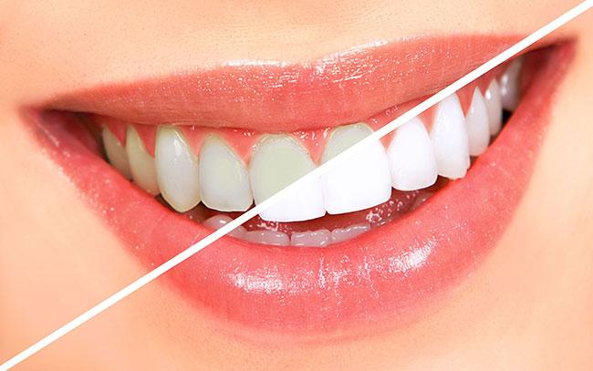 Lấy cao răng mất bao nhiêu thời gian 2